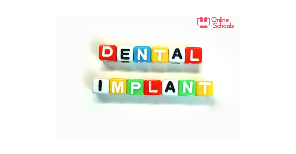 Price of dental implants – Various prices and options